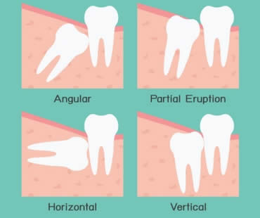Wisdom teeth dentist