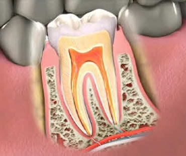 Root Canal Treatment Sarasota