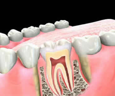 Sarasota root canal treatment